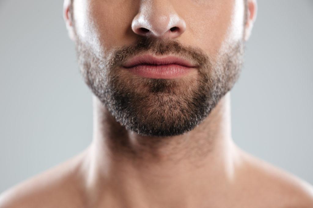 Injerto de barba