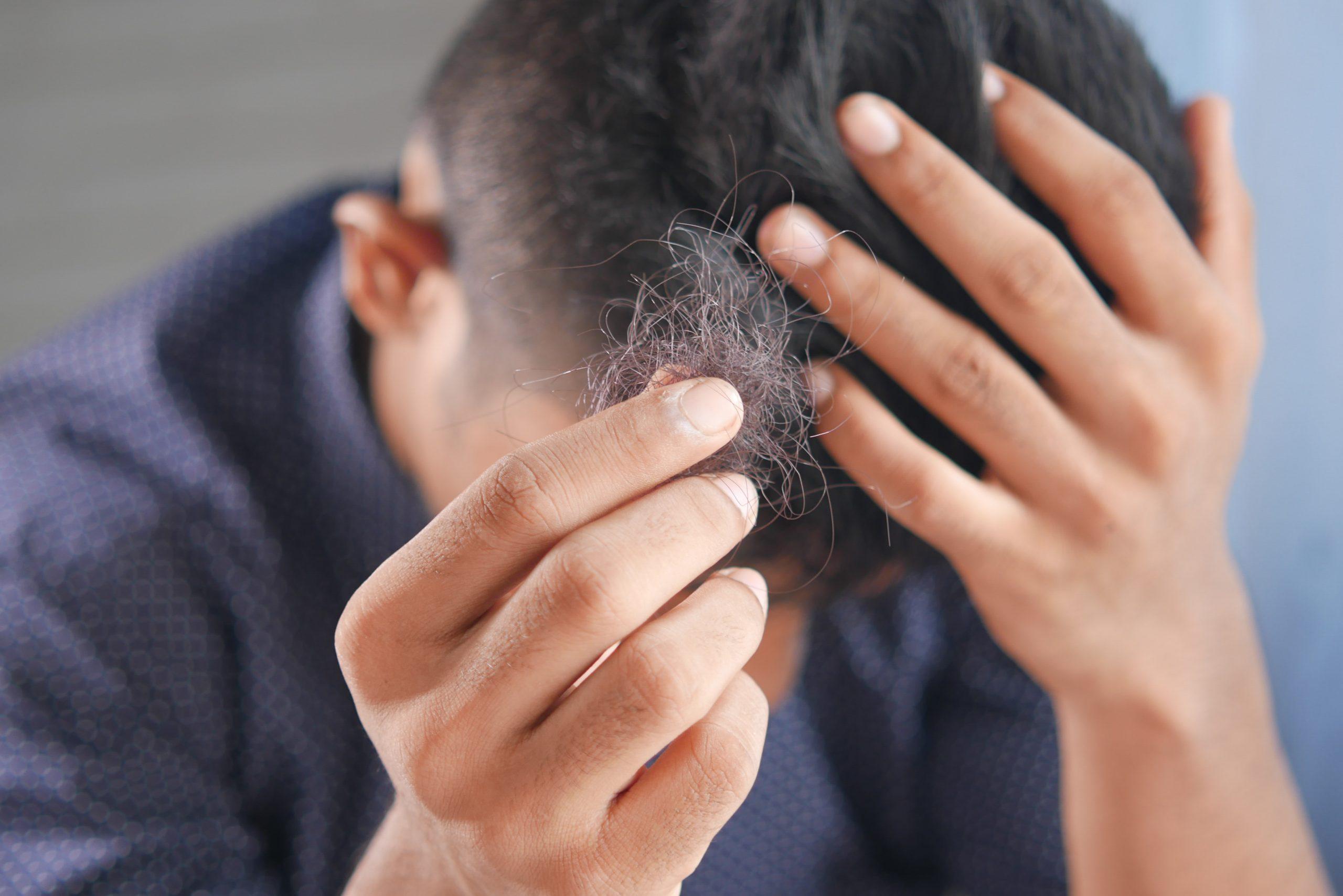 Alopecia MAGA: ¿Qué es y cuáles son sus síntomas?